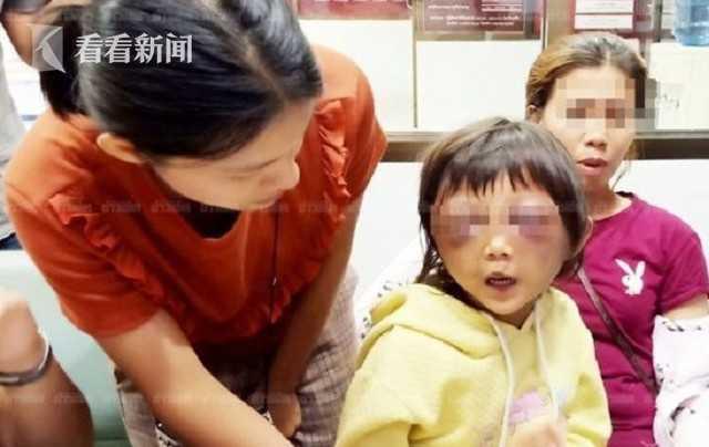 女童遭家暴雙眼瘀腫 替母求情